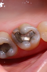 fillings 1 - White Fillings