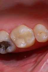fillings 2 - White Fillings